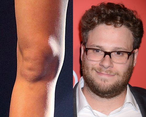 Miley Cyrus' Kneecap Looks Like Seth Rogen's Face